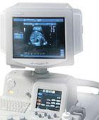 Ультразвуковой сканер Logiq 5 Pro